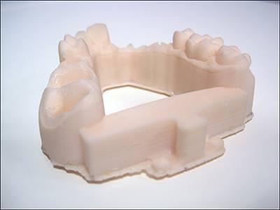 Molde dental impreso a 50 micras en resina blanca.