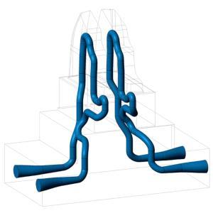 3D Metallschmelzen
