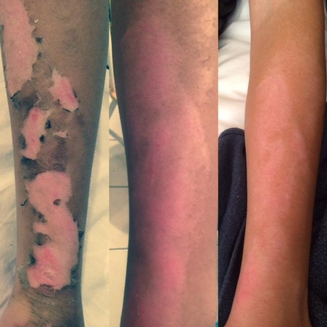 First Day Picture,first week & second week of skin repair using Regenere3D