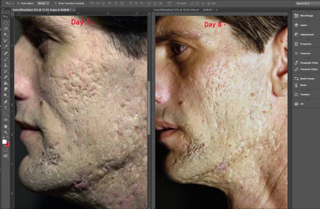 Before picture & 8th day picture after using Regenere3D