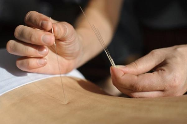 Agopuntura milanesio