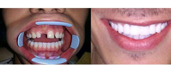 Dental implant - Belgrade