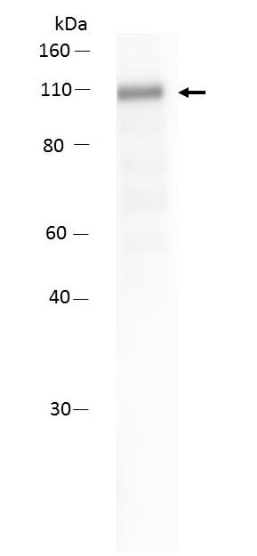 Anticorps Anti-AKAP4 (clone 6F12)