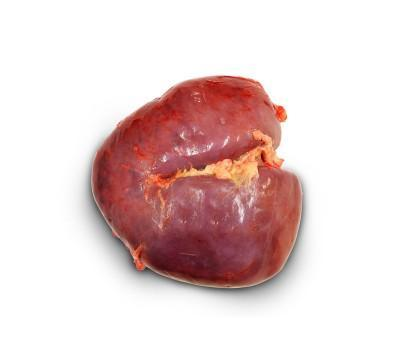 Kidney - null