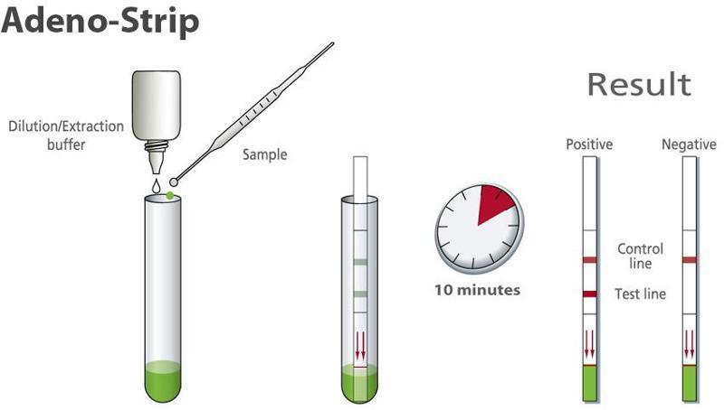 Rapid diagnostic for detection of Adenovirus - null