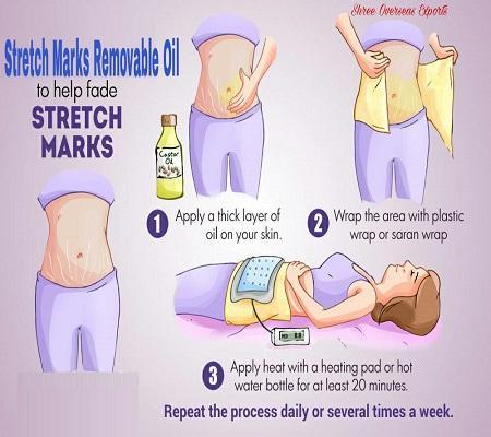 Organic Stretch Mark Removal Essential Oil - USDA Organic