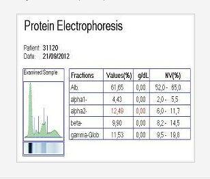 Electrophoresis analyzer software