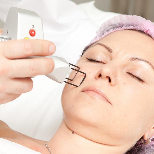 Лазерная шлифовка кожи - Лазерная шлифовка кожи лица, шеи, рубцов, шрамов