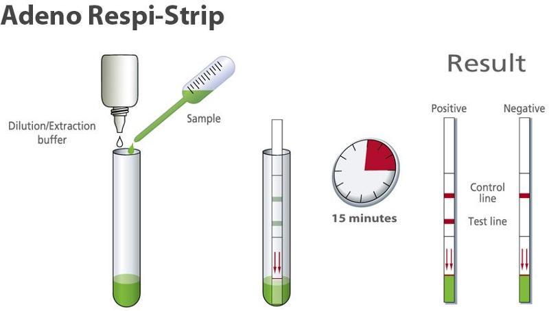 Rapid diagnostic test for detection of Respiratory Adenovirus - null