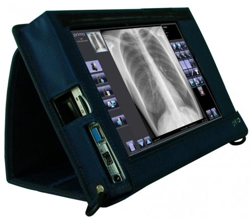 Digital Radiography - Primo W add-on