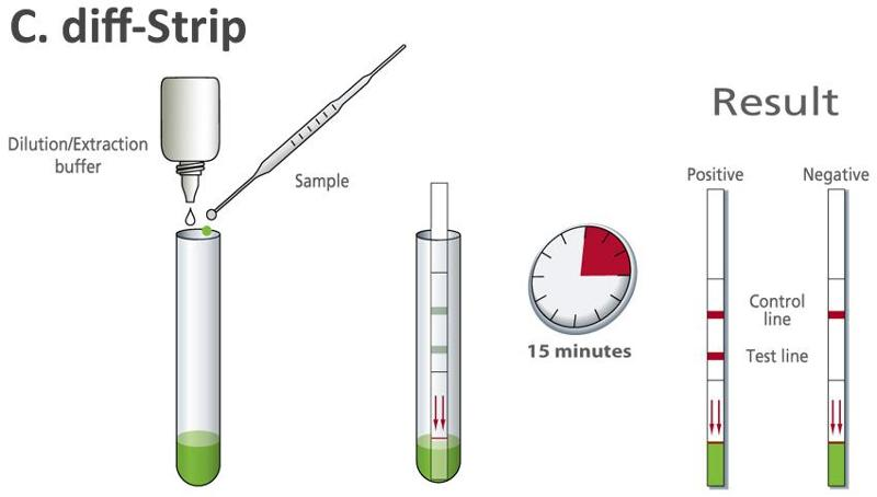 Rapid test for detection of Clostridium difficile antigen - null