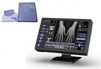 Digital Radiography - Primo