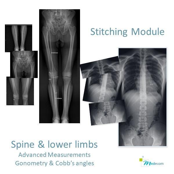 Stitching - Recalage d'images - Recalage de 2 à 6 images de la colonne ou des membres inférieurs
