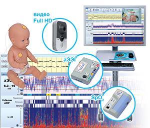 Монитор церебральных функций «Энцефалан-ЦФМ» -