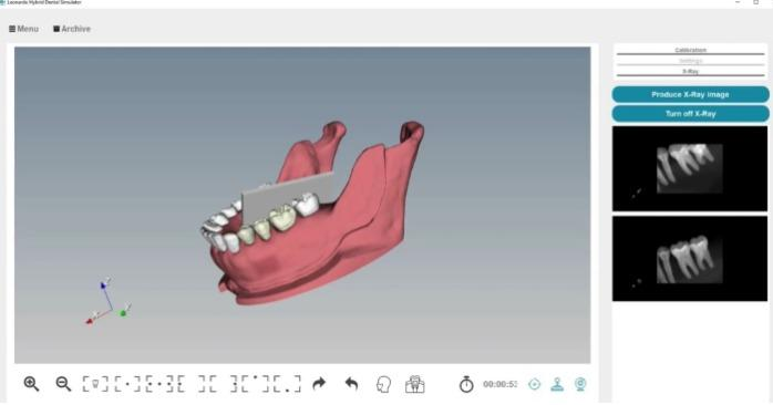 Simulateur dentaire  - Simulateur dentaire hybride «LEONARDO»