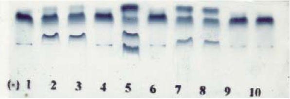 Hemoglobin electrophoresis kit in Acid