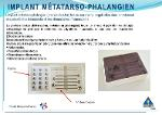 Implant métatarso-phalangien
