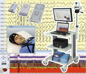 Комплект видеооборудования для ЭЭГ-видеомониторинга