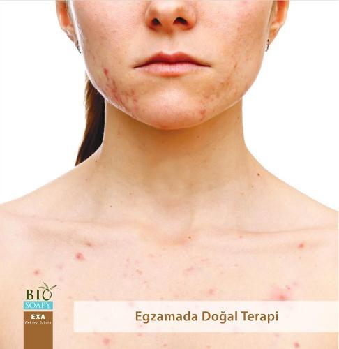 Biosoapy@ EXA Sabunu 100 Gr