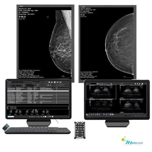 Med Mammo - Console de diagnostic pour la mammographie