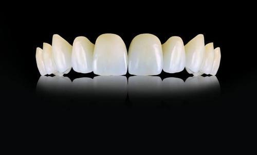 Протезирование зубов от 68 700 рублей в стоматологии Ладент