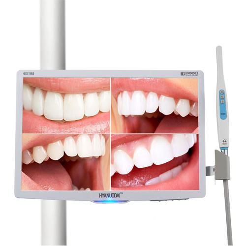 Multimedia Intraoral Camera with 18.5inch monitor with holde