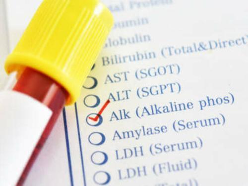 Reagenz für alkalische Phosphatase