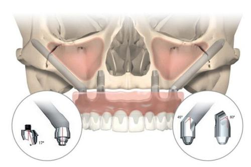Протезирование на имплантах в стоматологии Ладент за 72000 р